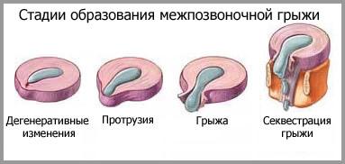 gryja-2-2
